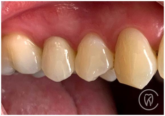 Krone zwischen den Zähnen fast nicht erkennbar